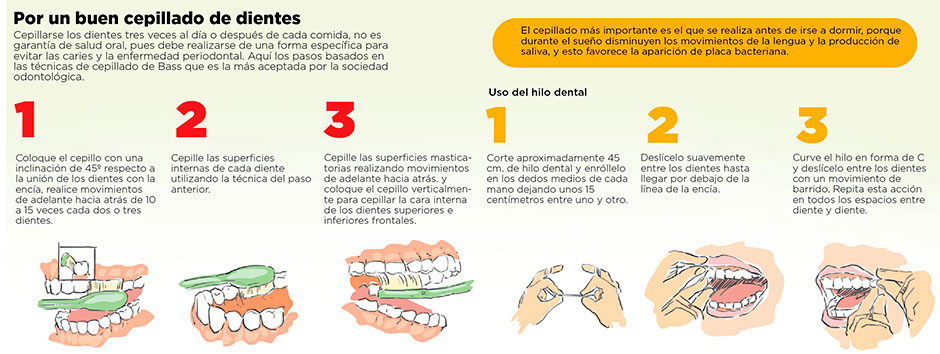291014 caries