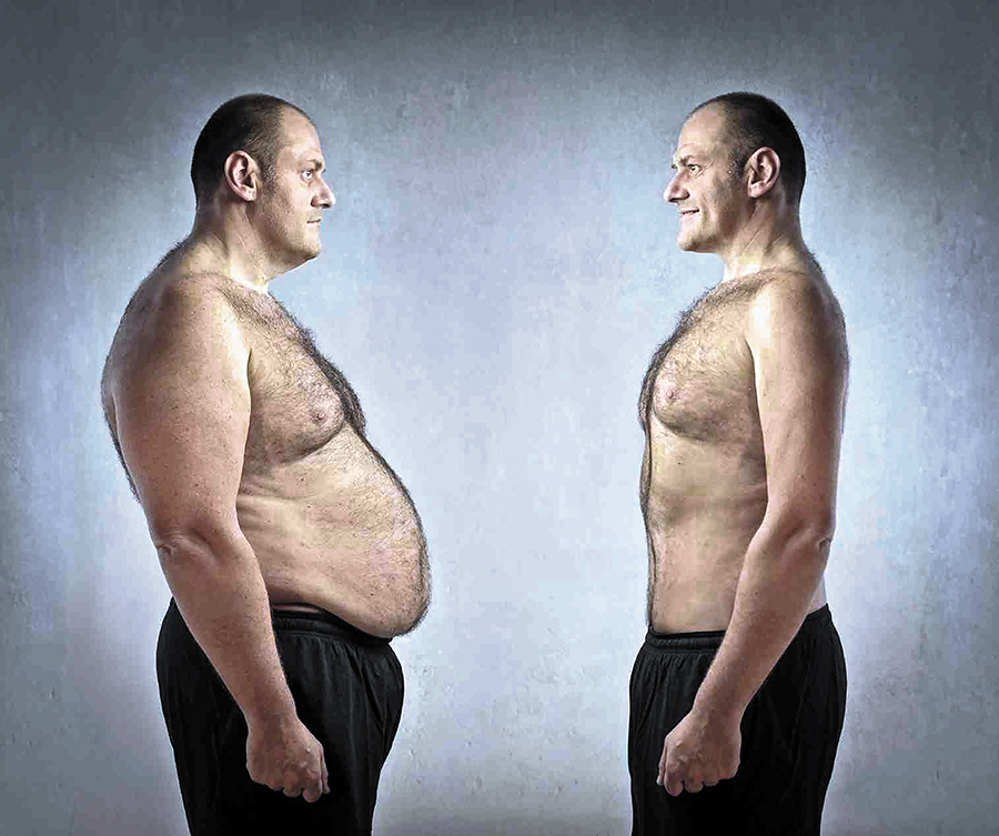 Does Bariatric Surgery Change Hypertension And Diabetes The New